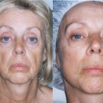 Microcurrent Facial Rejuvenation at Spa in Freehold, NJ