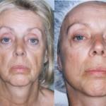 Microcurrent Facial Rejuvenation at Spa in Freehold, NJ